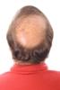 השתלת שיער כחוט השיערה