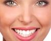 השתלות שיניים לשיפור האסתטיקה של הפה והפנים