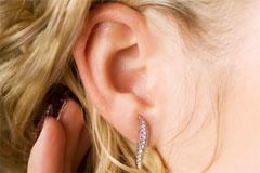 הצמדת אוזניים - שאלות ותשובות