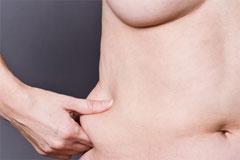 שאיבת שומן - שאלות ותשובות