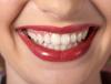 יישור שיניים בלייזר